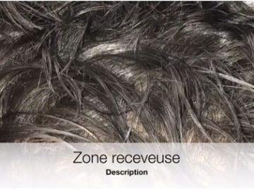 mésogreffe de cheveux