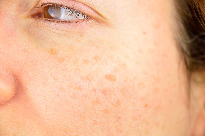 tâches pigmentaires traitement lyon