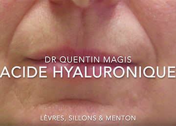 injection acide hyaluronique