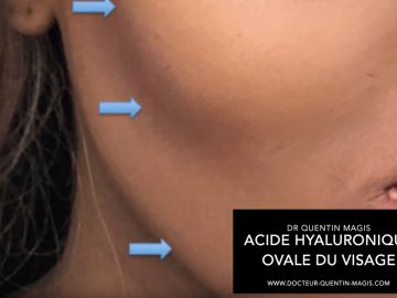 Zones injections ovale du visage