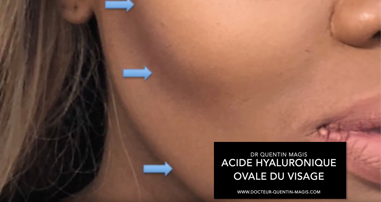 Zones injections ovale du visage