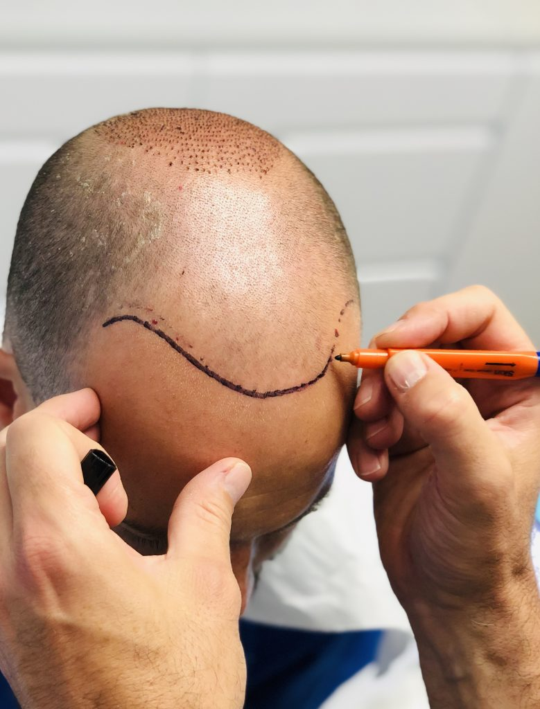 dessin du contour de la zone cheveux à greffer