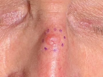 gros plan d'un carcinome basocellulaire sur le nez